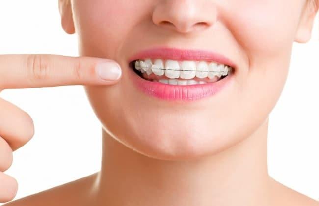 Nha khoa BS Toàn là Top 10 địa chỉ niềng răng uy tín nhất TP. Hồ Chí Minh