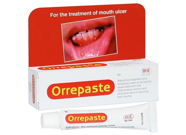 Orrepaste là Top 10 Loại thuốc bôi nhiệt miệng hiệu quả nhất hiện nay