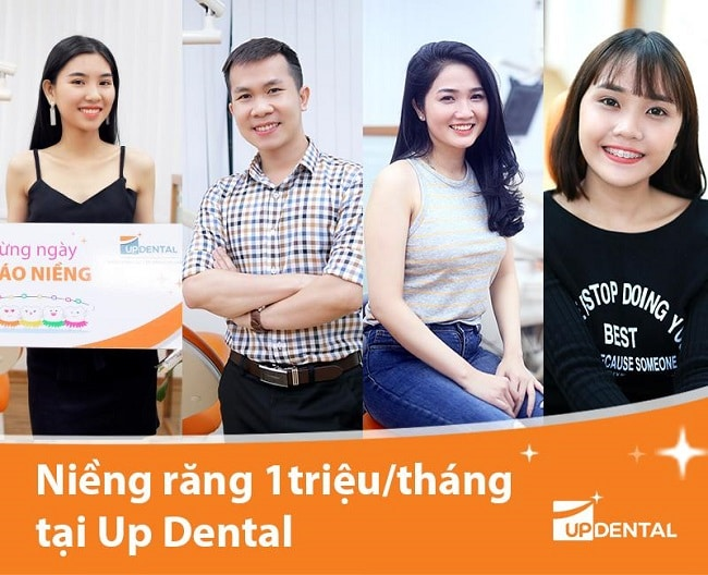 Khách hàng niềng răng tại Up Dental