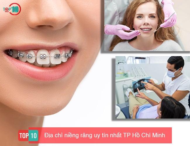 Top 10 địa chỉ niềng răng uy tín nhất TP. Hồ Chí Minh