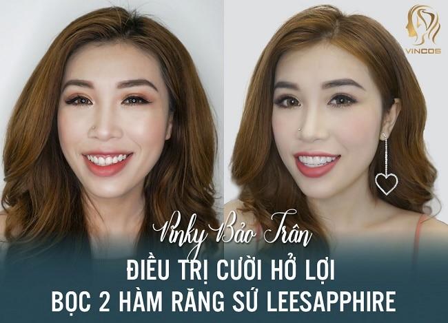 Nha khoa bọc răng sứ uy tín thành phố Hồ Chí Minh-Thẫm mỹ Vincos and Dr. Lee