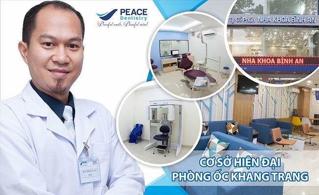 Nha khoa nhổ răng khôn uy tín ở TPHCM-Peace Dentistry