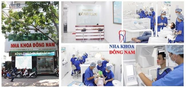 Nha khoa nhổ răng khôn uy tín ở TPHCM-ĐôngNam