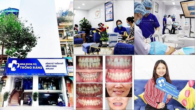 Nha khoa niềng răng uy tín
