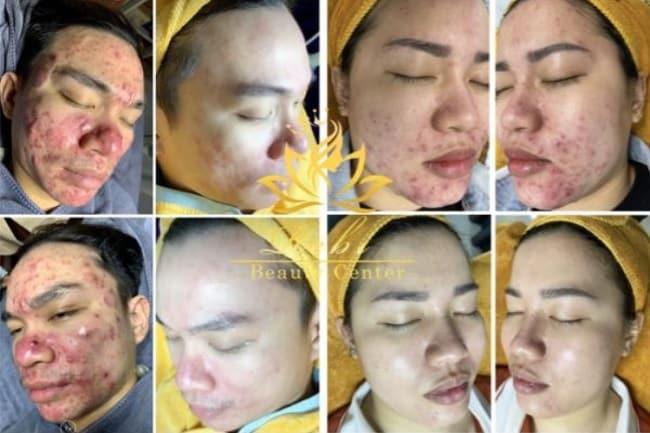 Hiệu quả sau khi trị liệu tại Ribi Beauty Spa