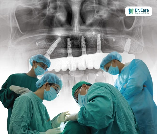 Trồng răng Dr care